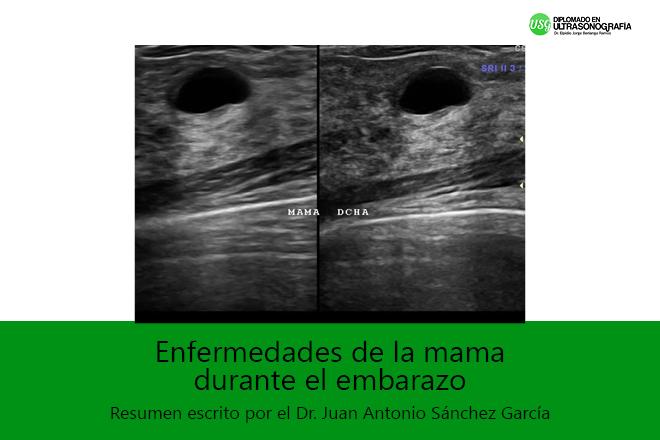 Infecciones Perinatales transmitidas por la madre a su hijo