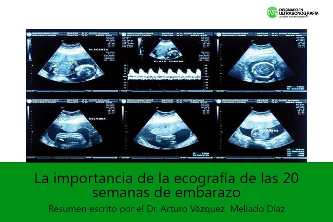 La importancia de la ecografía de las 20 semanas de embarazo ...
