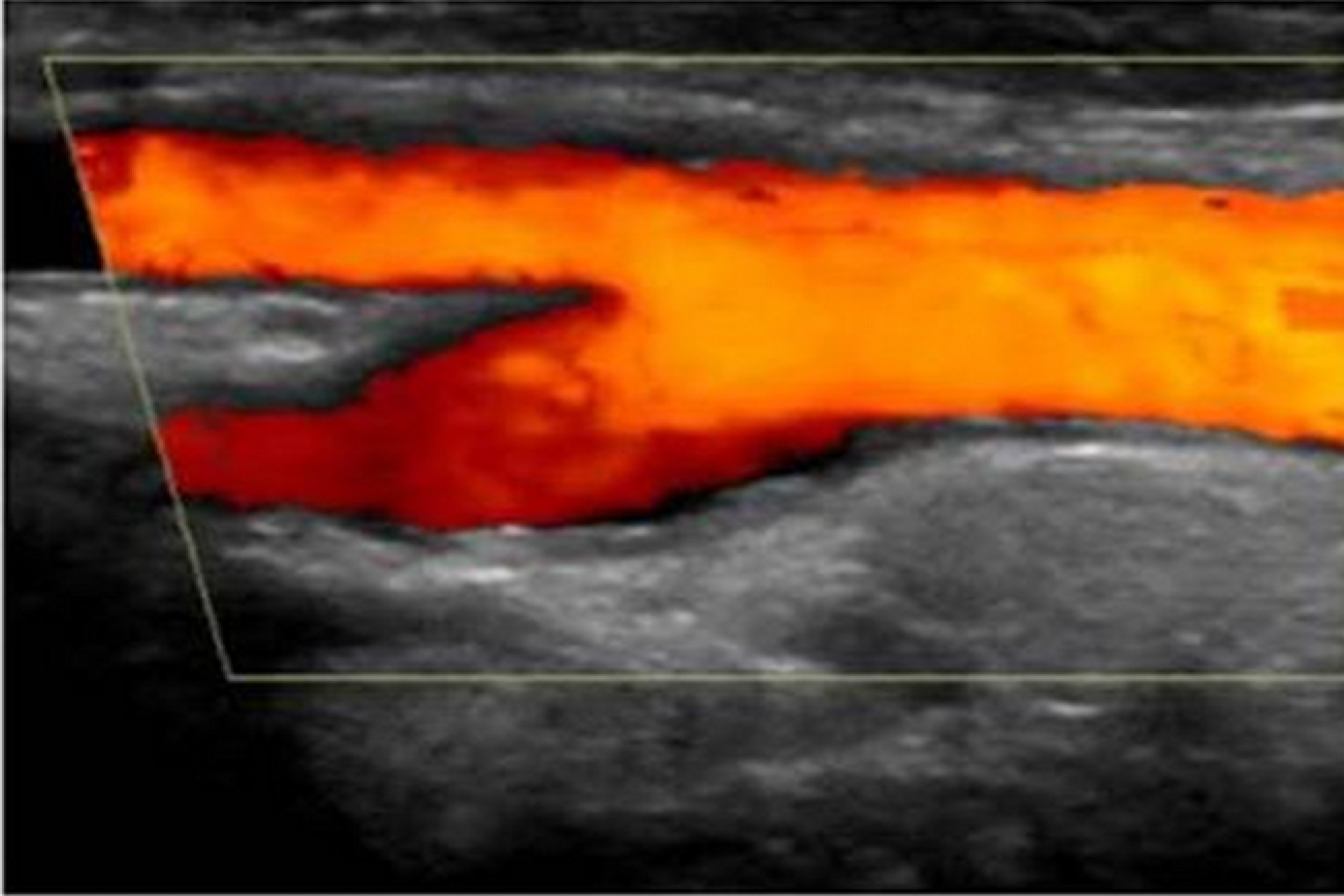 Anatomía vascular e iniciación al Doppler - Diplomadomedico.com