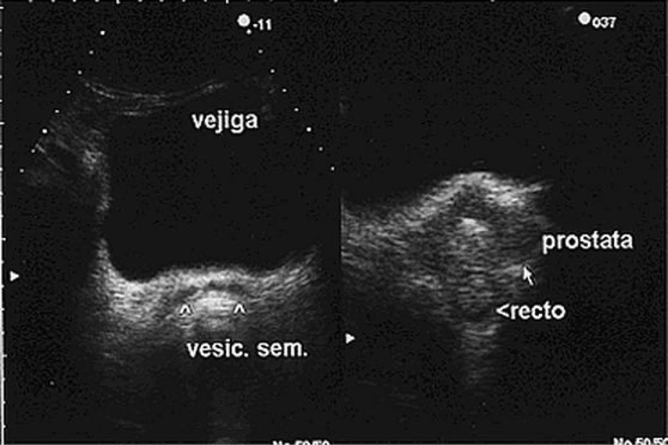 Hiperplasia prostática benigna y la utilidad del ultrasonido para su ...