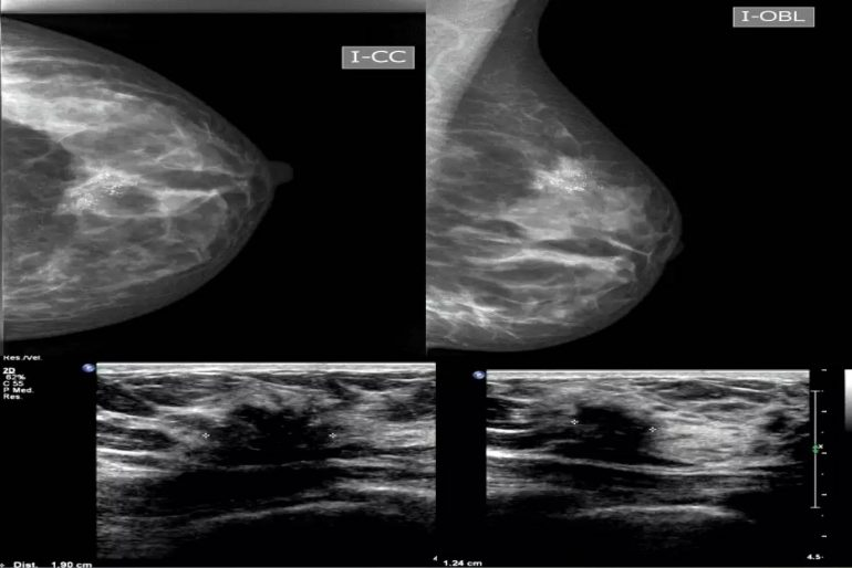 diagnostico diferencial embarazo: