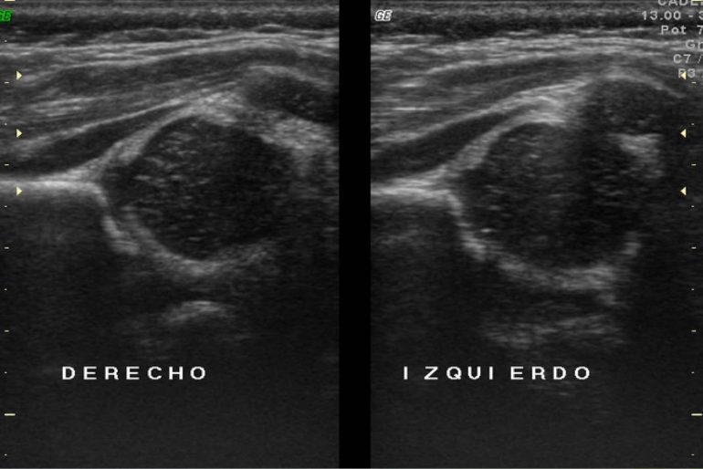 Ultrasonido ortopédico de la cadera infantil -