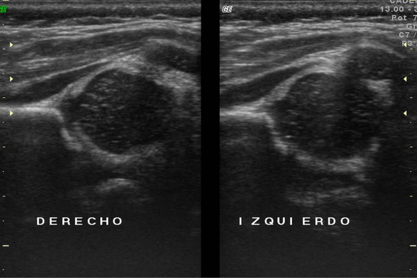 Excepcional Anatomía Ultrasonido De La Cadera Patrón - Imágenes de ...