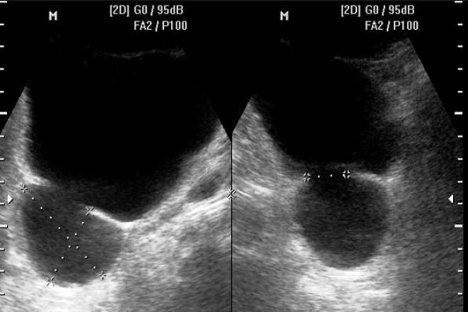 Anatomía ecográfica de próstata -