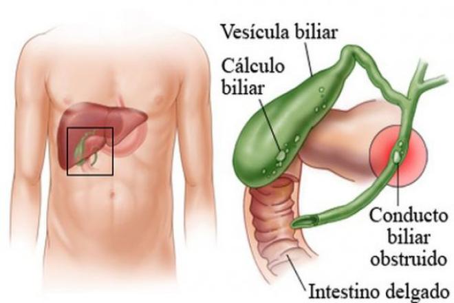 Anatomía vesícula biliar -