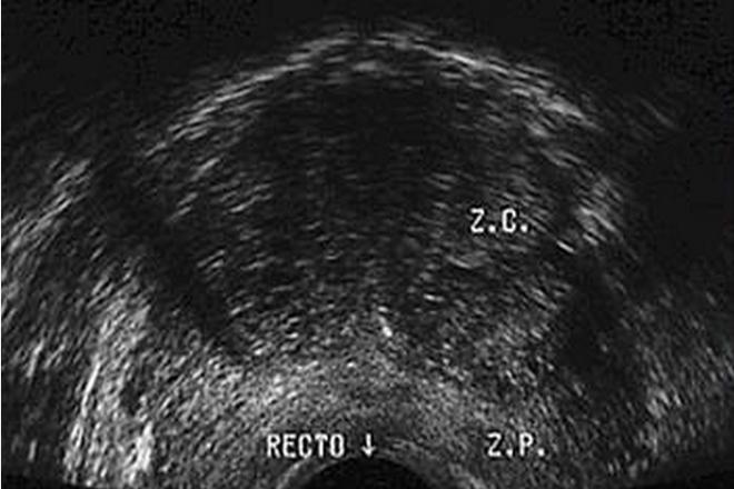 ultrasonografía prostata via transrectal