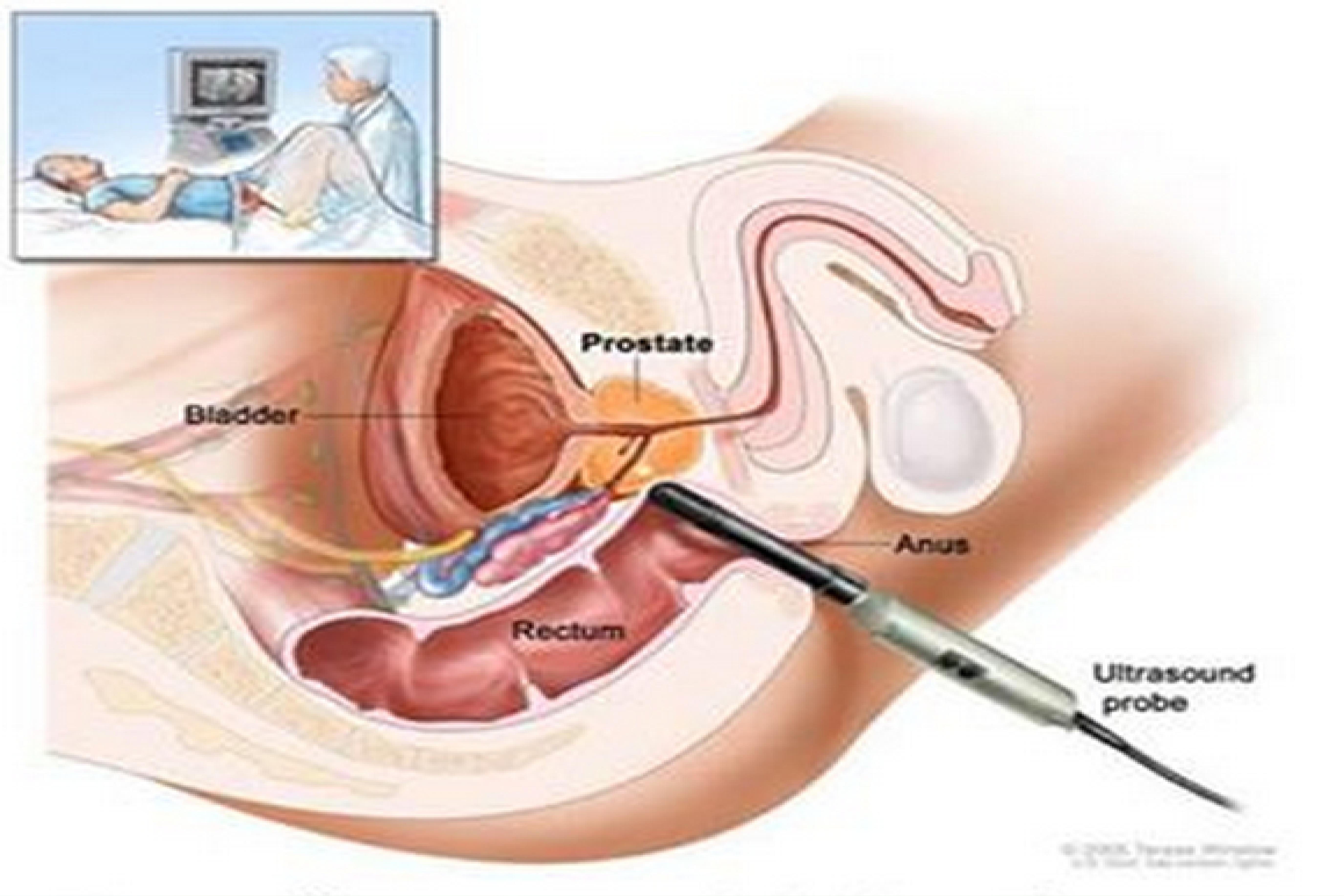 qué es una ecografia transrectal de prostata