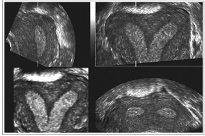 En una ecografia abdominal se ve si estas embarazada
