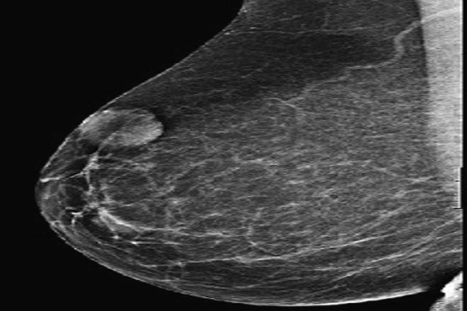 adenoma hipoecoico no homogéneo de la próstata