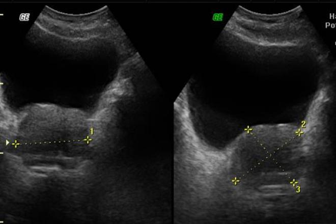 tamaño y peso de la prostata segun edad