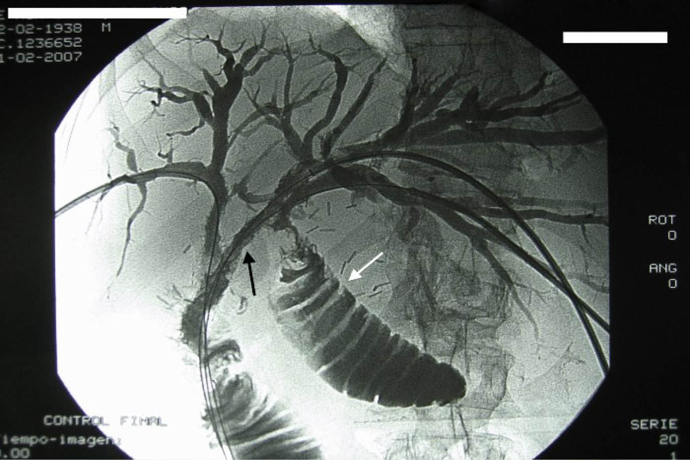 Cancer via biliar intrahepatica - Cancer via biliar intra hepatica