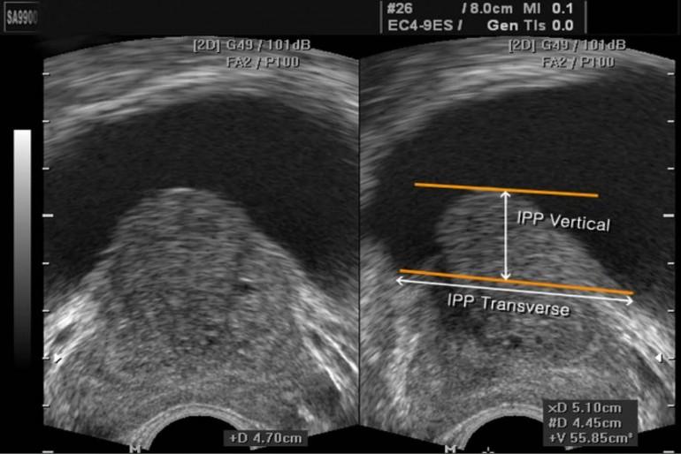 ultrasonido completo del abdomen para próstata
