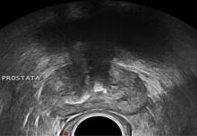 ultrasonido de próstata seramica