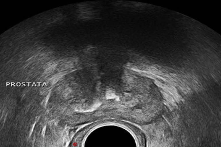 para sonda de ultrasonido de próstata de alta frecuencia