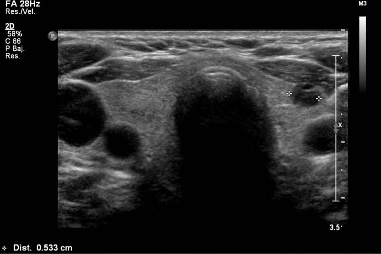 quiste en nodulo tiroideo