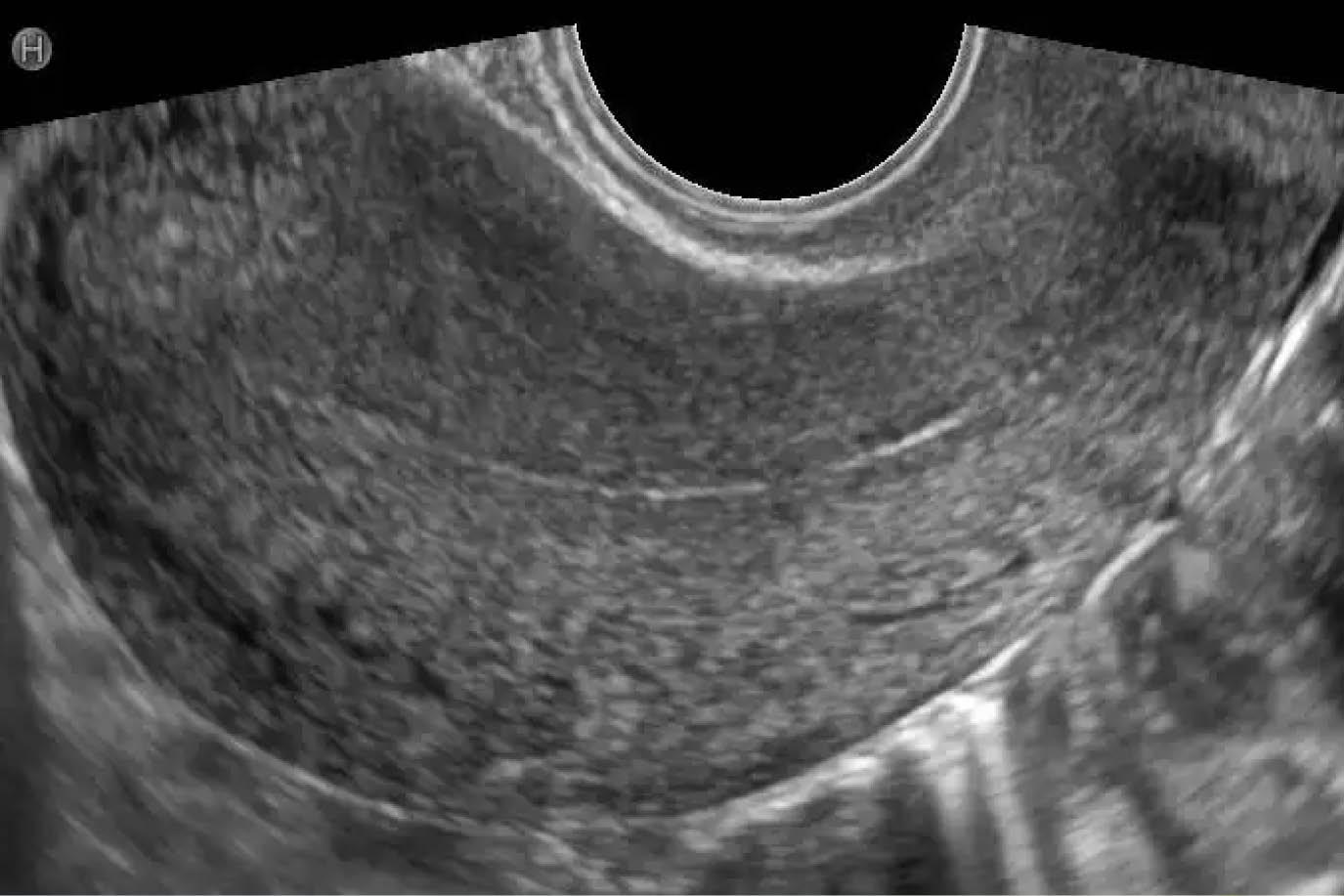 cancer endometrial ecografia durata intervento papilloma del seno