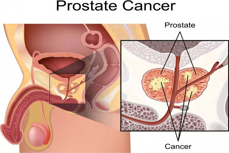 muerte por síntomas de cáncer de próstata