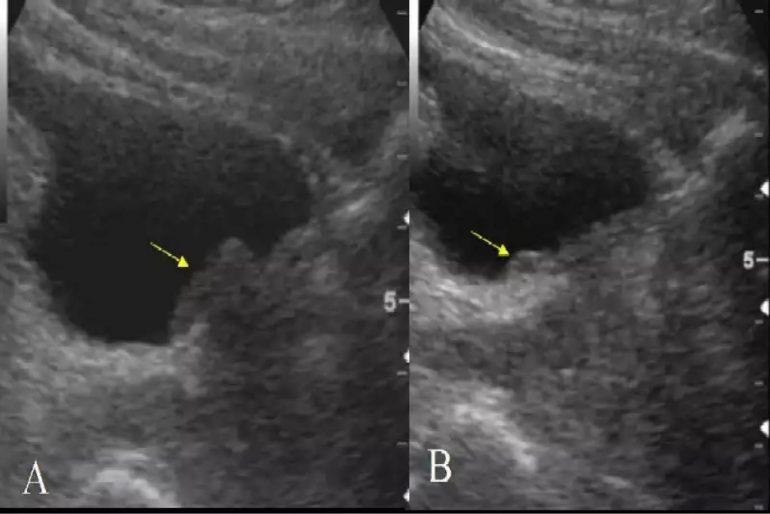 aumento de próstata con presencia del tercer lóbulo