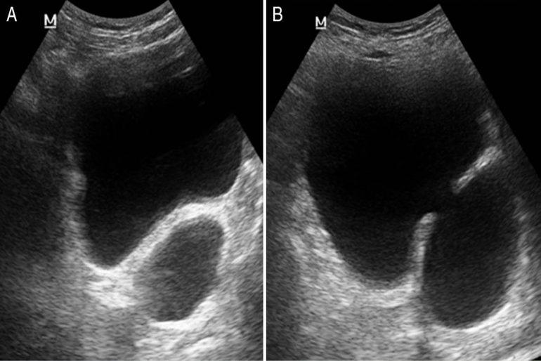 resección suprapúbica de la próstata