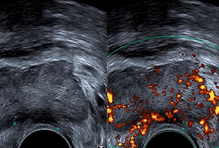 próstata nódulo hipoecoico qué es