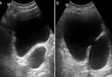 ultrasonido de próstata y suprapúbico ppt de