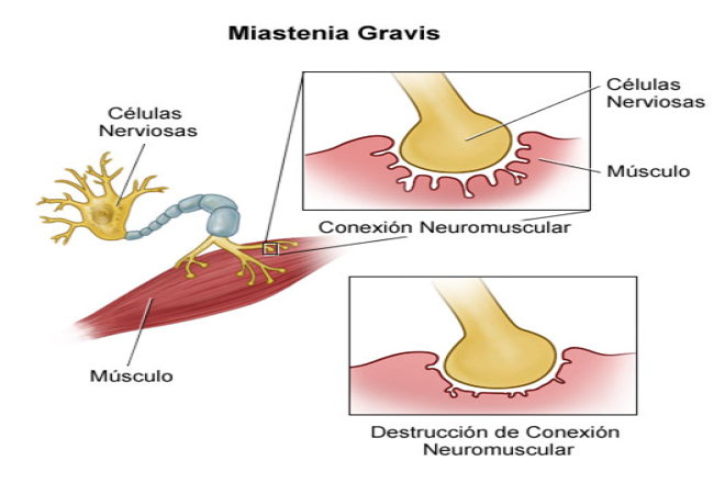 Miastenia Gravis: Ce este, cauze, simptome, tratament | british-pub.ro