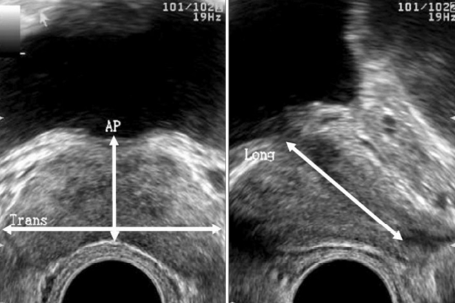 Prostatitis por ultrasonido trans rectal