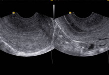 marcador p63 prostata