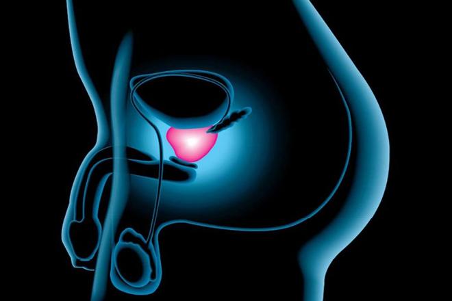 prostatitis crónica y cáncer
