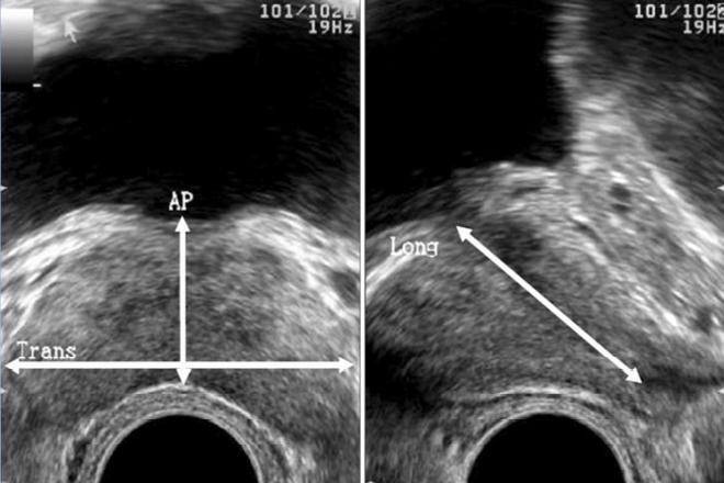 un ultrasonido puede mostrar cáncer de próstata