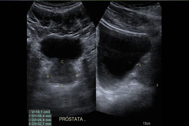 opciones de tratamiento para el cáncer de próstata después de la radiación