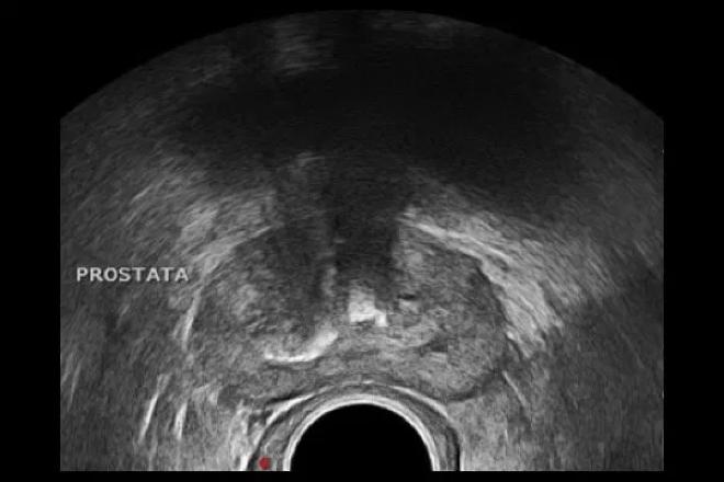 nódulo de próstata hipoecogénico